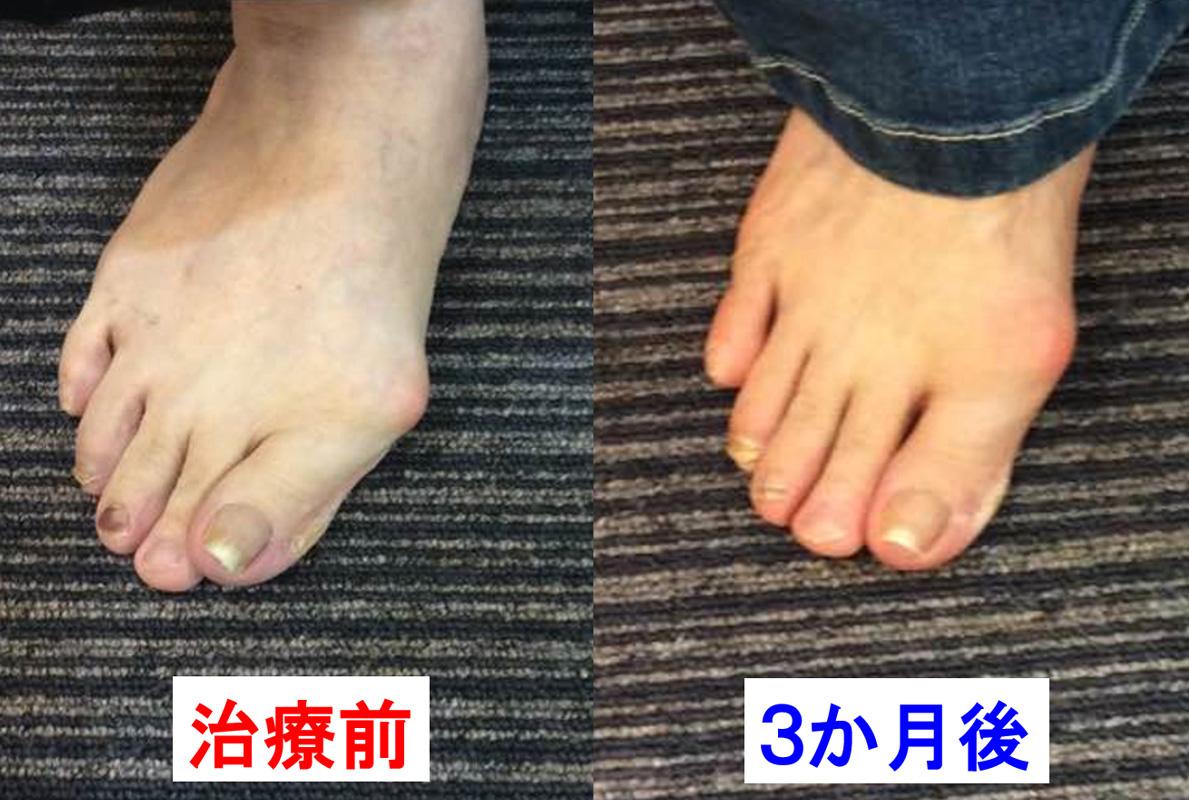外反母趾の改善1