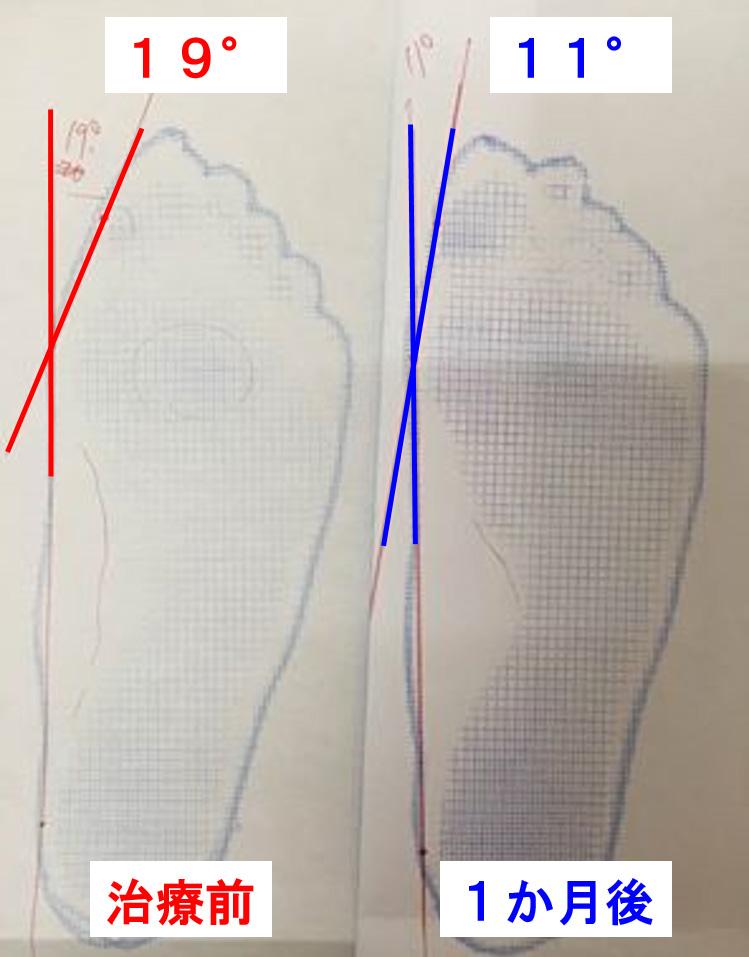 外反母趾の改善2