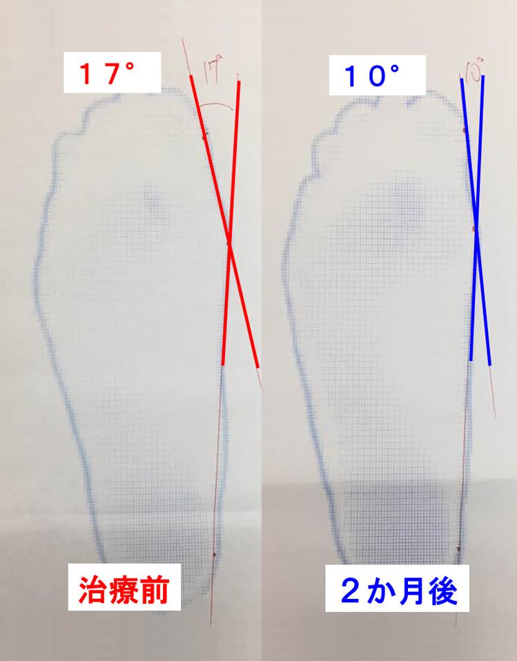 外反母趾の改善3