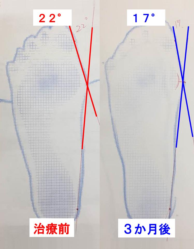 外反母趾の改善5