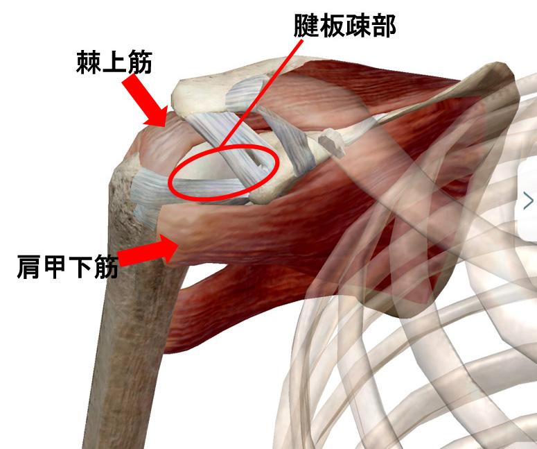 腱板疎部損傷