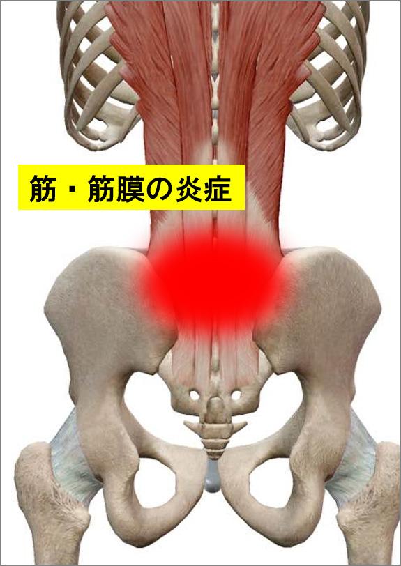 筋肉・筋膜