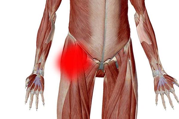 股関節の痛みの原因は筋肉
