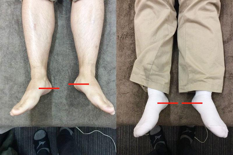 足の長さの違い