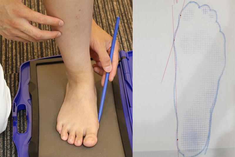 検査と足の計測