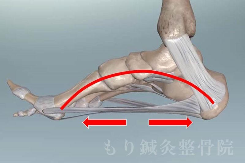 足底筋膜炎とは